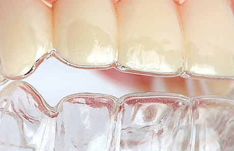 Blog_clear-aligners2