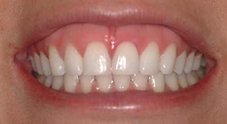 Instead of risking enamel damage, Dr. Morgan had her patient brush with Opalescence Whitening Toothpaste to remove the remaining charcoal and plaque indicator, with sparkling results!