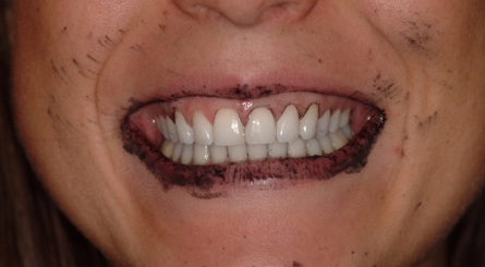 After brushing with activated charcoal and rinsing, difficult to remove charcoal residue is left in the patient's gingival margins and teeth.