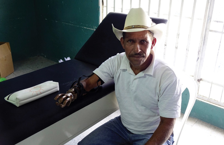 Patient with new prosthetic arm