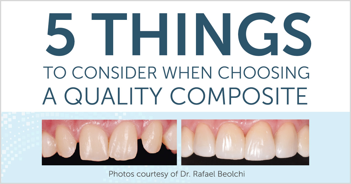 5 Things to Consider when choosing a quality composite